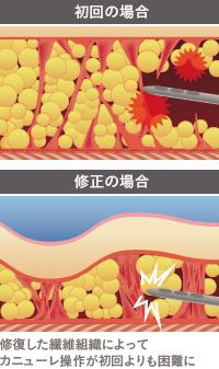 脂肪吸引で変化する皮下組織