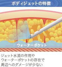 ベイザー脂肪吸引:ボディジェット脂肪吸引の特徴