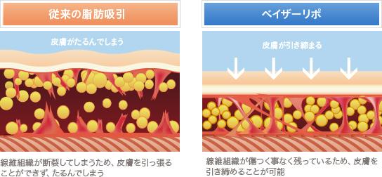 ベイザー脂肪吸引:従来の脂肪吸引とベイザーリポの違い
