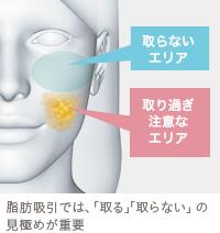 顔の脂肪吸引の適応とは?