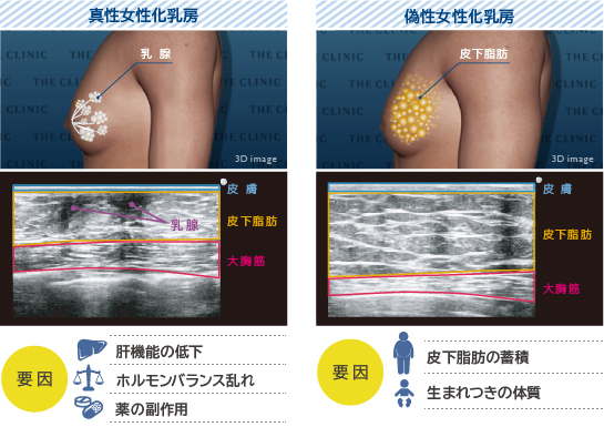 ベイザー脂肪吸引:真性女性化乳房と偽性女性化乳房