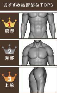 脂肪吸引で筋肉美をゲット