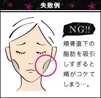 少しのミスが命取り。顔の脂肪吸引のリスクとは?
