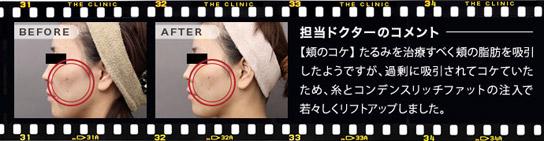 ベイザー脂肪吸引:糸と脂肪注入の併用で頬のくぼみを改善した例