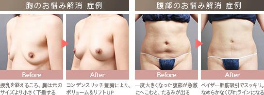 ベイザー脂肪吸引:授乳後に行った豊胸、産後に行った脂肪吸引の症例