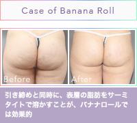 お尻のバナナロールが消える!?