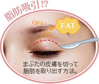 多くの人が一度は考える、まぶたの脂肪吸引による治療効果