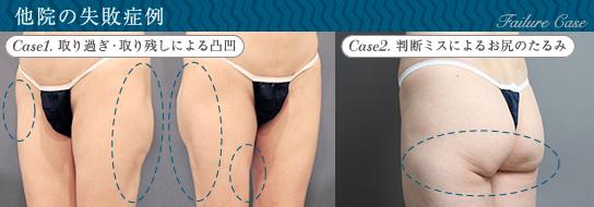 ベイザー脂肪吸引:太もも脂肪吸引の他院失敗例