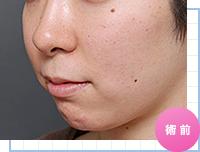 ベイザー脂肪吸引:顔の脂肪吸引の術前の様子