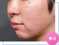 ベイザー脂肪吸引:顔の脂肪吸引の手術翌日の様子