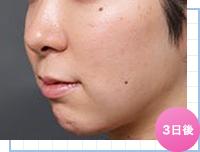 ベイザー脂肪吸引:顔の脂肪吸引の術後3日の様子