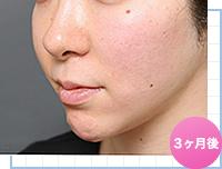 ベイザー脂肪吸引:顔の脂肪吸引の術後3ヶ月の様子