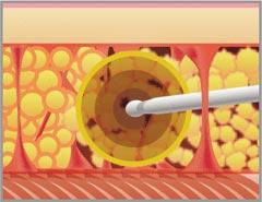 2、VASER波で脂肪のみを乳化させます