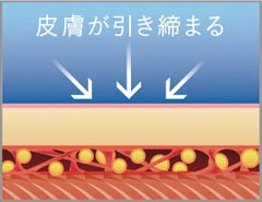 4、繊維組織を保った状態のため皮膚を引き締めます