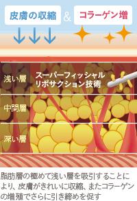 ベイザー脂肪吸引:スーパーフィッシャルリポサクション技術を行うことで、脂肪吸引後も皮膚が引き締まる
