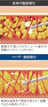 ベイザー脂肪吸引:従来の脂肪吸引とベイザー脂肪吸引の性能を比較