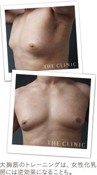 ベイザー脂肪吸引:大胸筋のトレーニングで胸の膨らみが目立ってしまった例