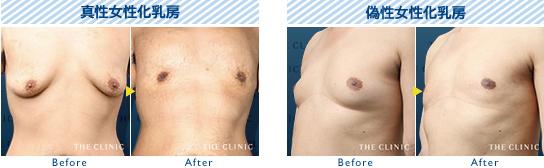 ベイザー脂肪吸引:THE CLINIC が行った女性化乳房の症例