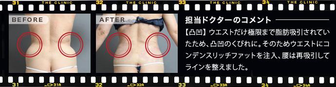 ベイザー脂肪吸引:他院のウエスト脂肪吸引の修正を行った例