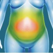 お腹の内臓脂肪と皮下脂肪の違いによる脂肪吸引の効果