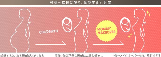 産後の体型変化による悩みを総合的に治療!