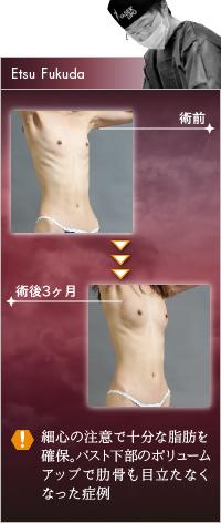 福田ドクター vs BMI13の豊胸脂肪注入