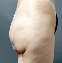 ベイザー脂肪吸引:他院脂肪吸引の失敗例