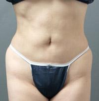 ベイザー脂肪吸引:ベイザーリポのメリット