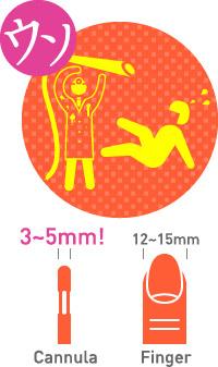 ベイザー脂肪吸引:脂肪吸引で使われる針に関する都市伝説