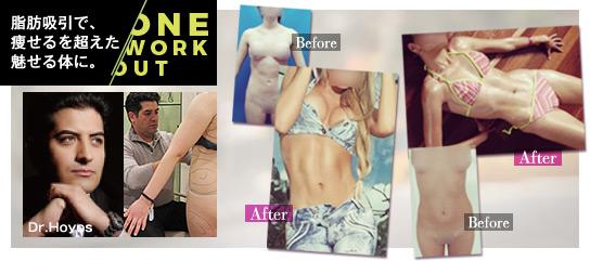 アブクラックスが手に入る究極の脂肪吸引「ONE Workout」