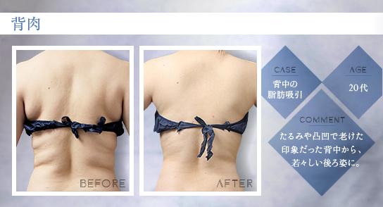ベイザー脂肪吸引:背中の脂肪吸引/20代女性の症例