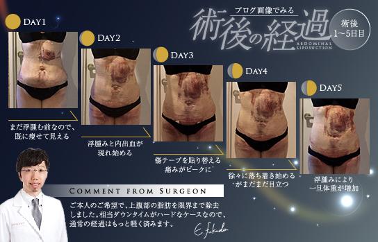 痛み・内出血・むくみは、脂肪吸引手術で不可避な宿命