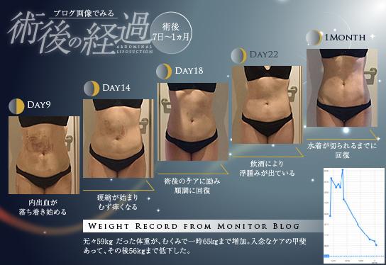 脂肪吸引後1ヵ月。お腹の内出血は目立たなくなり、経過良好