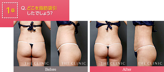 お尻の脂肪吸引の前に見ておきたい症例画像
