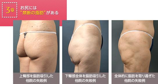 お尻のやみくもな脂肪吸引は危険! 高確率で失敗も