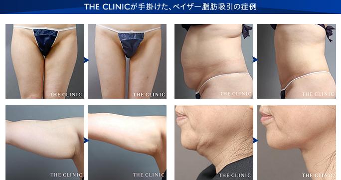 ベイザー脂肪吸引:THE CLINIC が手掛けたベイザー脂肪吸引の症例