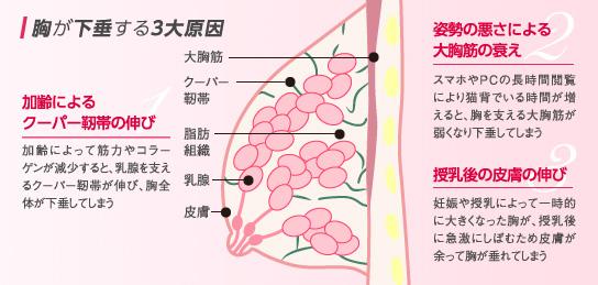 ベイザー脂肪吸引:胸が下垂する3大原因