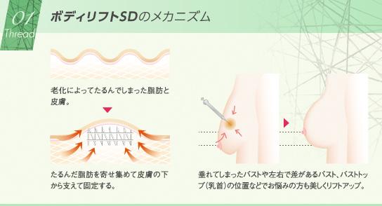 ベイザー脂肪吸引:ボディリフトSDのメカニズム