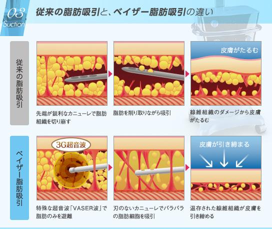 ベイザー脂肪吸引:従来の脂肪吸引と、ベイザー脂肪吸引の違い