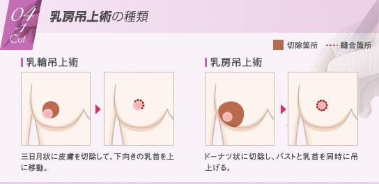 ベイザー脂肪吸引:乳房吊上術の種類