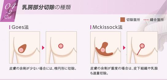 ベイザー脂肪吸引:乳房部分切除の種類